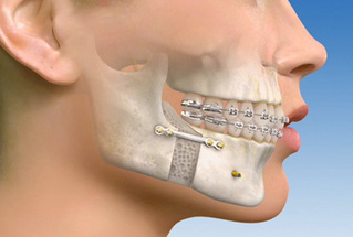 what is oral maxillofacial surgery smilesinc rh smilesinc bm Wiring a Fractured Jaw Broken Jaw Wired
